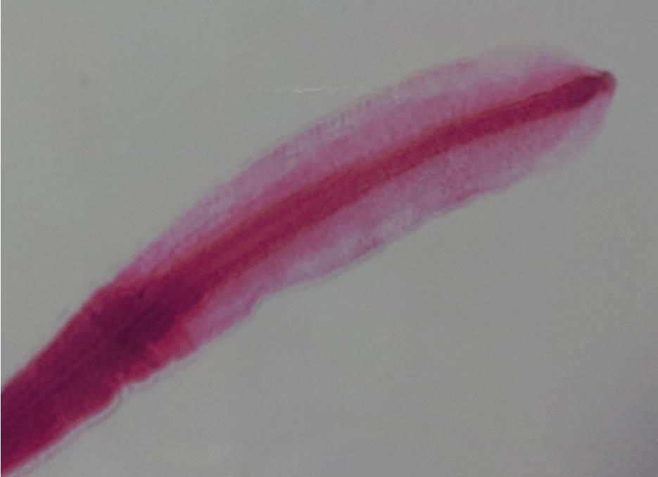 Cabeza de una tenia del pescado, Diphyllobothrium latum. (CC BY-SA)