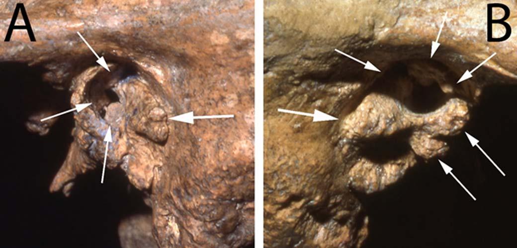 Dos vistas del conducto auditivo del fósil Neandertal Shanidar 1. En ellas se observan las deformidades que probablemente habrían provocado al individuo una sordera profunda. (Fotografías: Cortesía de Erik Trinkaus)