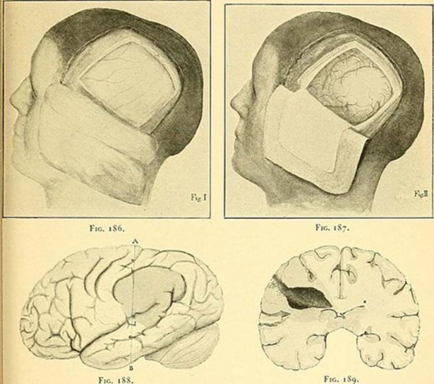La craneotomía consiste en la retirada de parte del cráneo para permitir el acceso al cerebro, o para dar espacio al cerebro y permitir que se hinche. (Internet Archive Book Images)