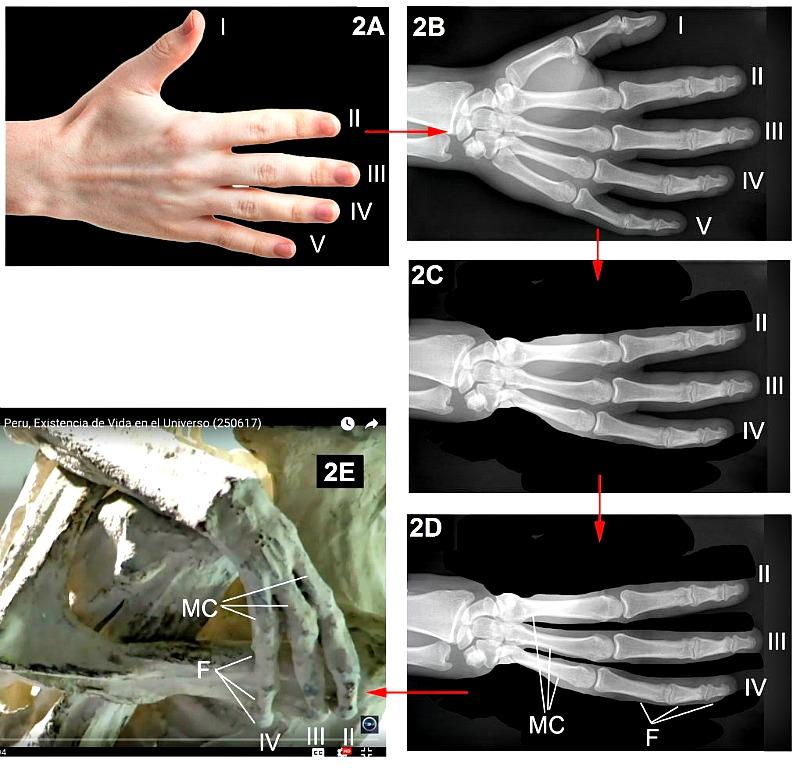 Figura 2. Fuente: Wikimedia. Radiografía de una mano humana (Hellerhoff – CC BY-SA 3.0) y fotografía de una mano humana: (Evan-Amos)