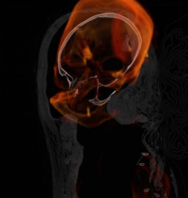 Otra imagen digital de Hatasón (Museo de Bellas Artes de San Francisco)