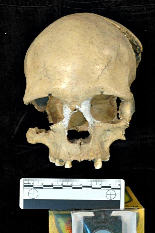 El cráneo de la mujer de Pestera Muierii (Rumania), de 35.000 años de antigüedad y del que se ha secuenciado el genoma mitocondrial completo (Fotografía: UPV/E. Trinkaus/A. Soficaru)