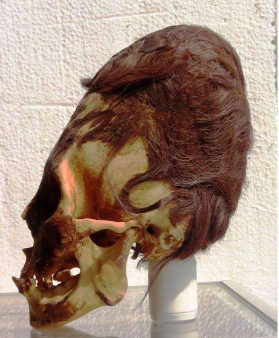 Este cráneo Paracas aún conserva sus cabellos pelirrojos. Fotografía: Brien Foerster