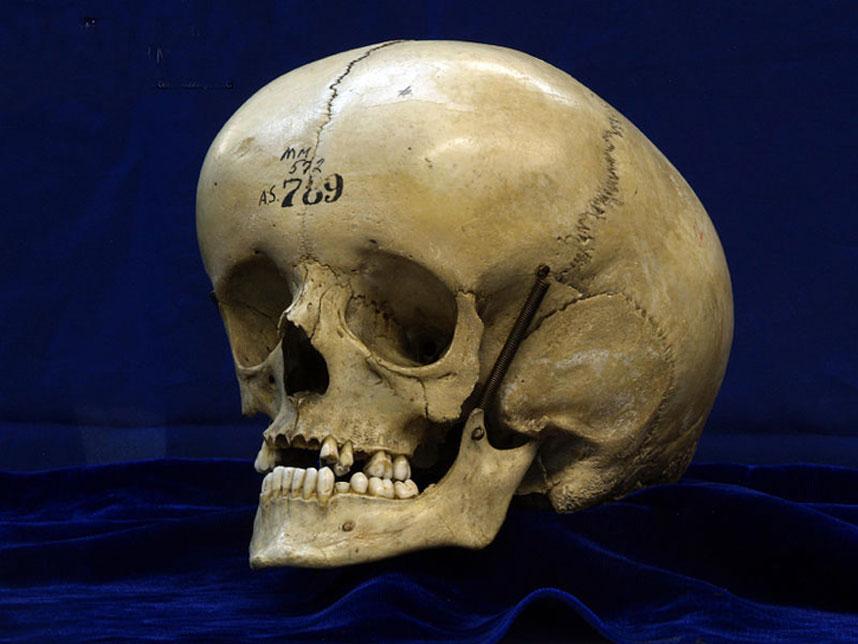 Cráneo abombado de un individuo con hidrocefalia. (CC BY 2.0)
