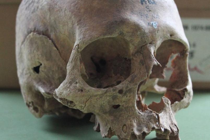 Uno de los cráneos de mujer excavados en el antiguo enterramiento de Repton. Crédito: Cat Jarman / Universidad de Bristol