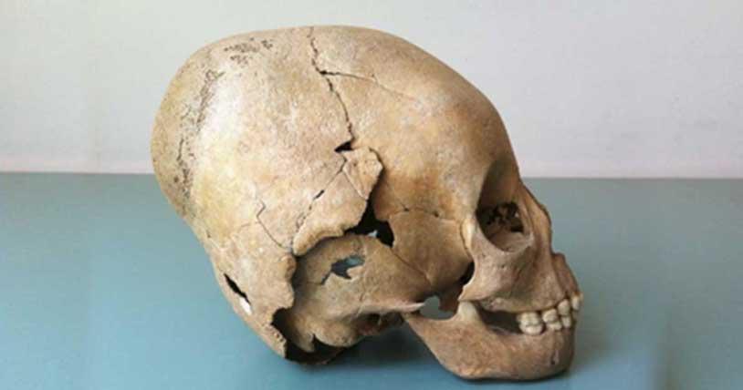 Ejemplo de un cráneo modificado, práctica originaria supuestamente de los hunos que podría haber sido adoptada por los campesinos locales. (Susanne Hakenbeck)