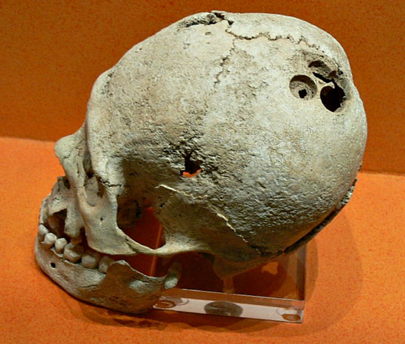 Trepanación craneal precolombina procedente del yacimiento arqueológico de Monte Albán, México. Museo de Sitio de la Zona Arqueológica de Monte Albán. (Wolfgang Sauber/GNU Free)