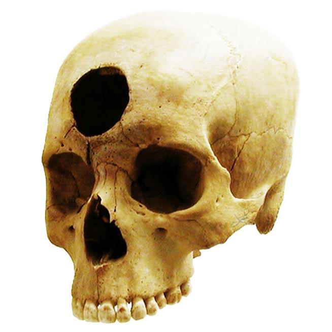 Cráneo con trepanación frontal perteneciente a la cultura Nazca peruana y datado en unos 2.000 años de antigüedad. (CC BY 2.0)