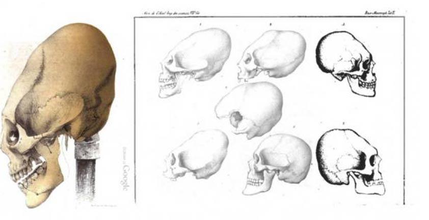 Cráneos elongados hallados en Crimea, (Baer 1860)