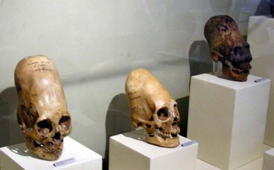Cráneos elongados expuestos en el Museo Regional de Ica, Perú. (Public Domain)