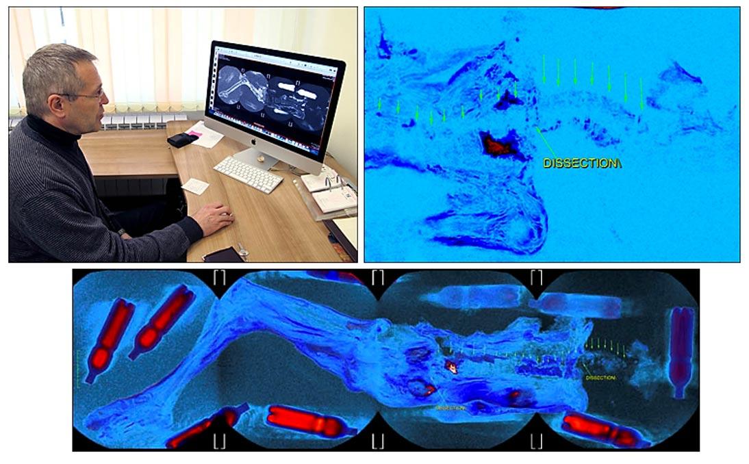Dr. Andrey Letyagin: 'Hemos detectado un tumor primario con metástasis en el pecho derecho y los ganglios linfáticos axiales derechos.' Imágenes: The Siberian Times, Andrey Letyagin