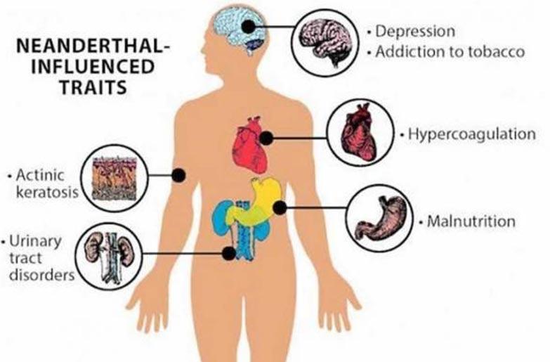 Se han relacionado los genes Neandertal con numerosos trastornos de salud que afectan al ser humano actual. (Deborah Brewington/Vanderbilt University)