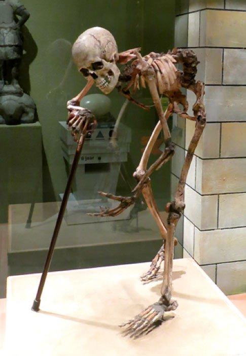 Esqueleto de una mujer medieval aquejada de escoliosis aguda. Murió entre 1350 y 1450 a una edad aproximada de 35 años. (CC BY 2.0)
