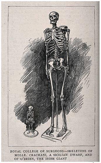 Esqueletos de un varón gigante y una mujer enana, expuestos en el Royal College of Surgeons (Colegio Real de Cirujanos).