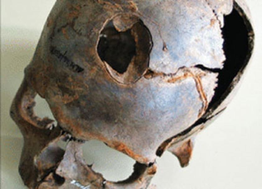 Entre los hallazgos realizados en el yacimiento se encuentra este cráneo humano con la mortal fractura que se observa en la fotografía. (D. Jantzen/Never Yet Melted)