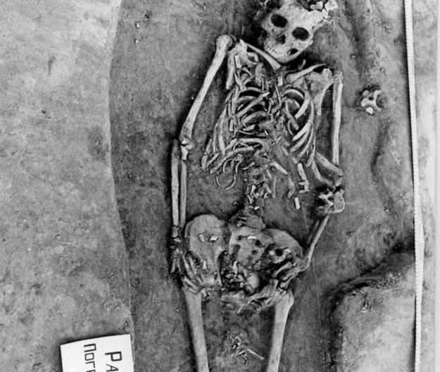 Los huesos de los fetos de gemelos de esta mujer siberiana son visibles cerca de su pelvis y muslos. (Fotografía: Vladimir Bazaliiskii)
