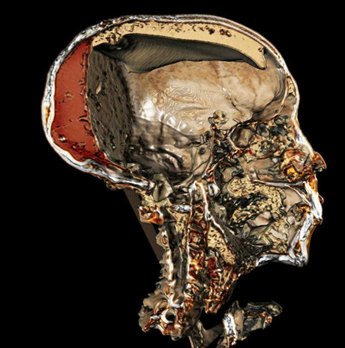 Esta imagen obtenida mediante tomografía computadorizada nos ofrece una sección detallada del cráneo momificado del faraón Tutankamón, en la que se puede apreciar incluso la resina que inyectaron en su cadáver los embalsamadores. (Sahar Saleem)