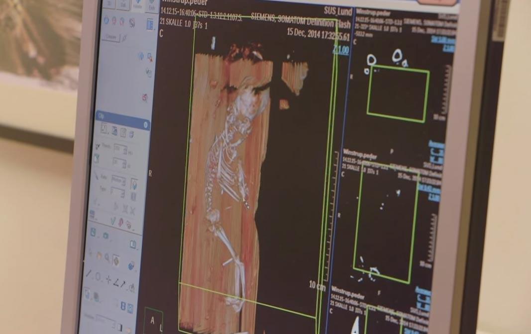Imagen digital en la que se observan los restos óseos del feto hallado en el interior de la tumba de Peder Winstrup. (YouTube Screengrab / Lund University)
