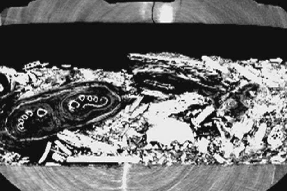Imagen de la tomografía computarizada en la que se observan los pies de la momia. (ABC News)