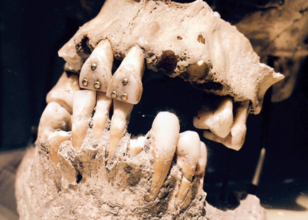 Dientes con incrustaciones de oro, cráneo precolombino hallado en Ecuador. Fotografía: April Holloway