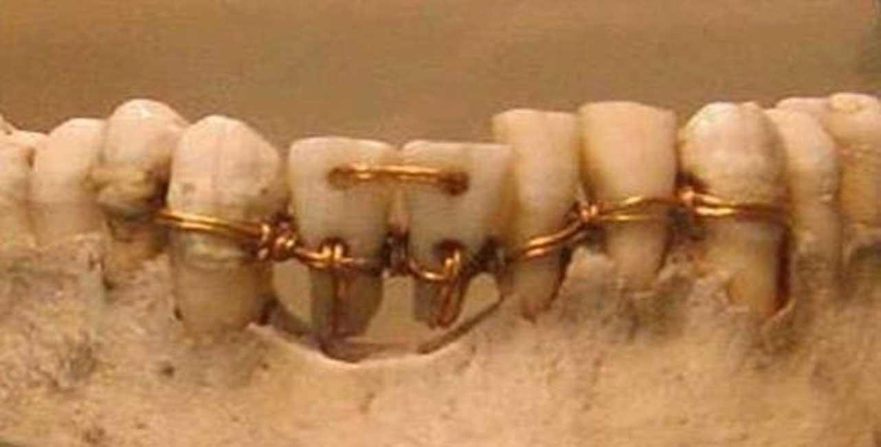 Increíble intervención realizada en la dentadura de una antigua momia. Los dos dientes centrales proceden de donantes.