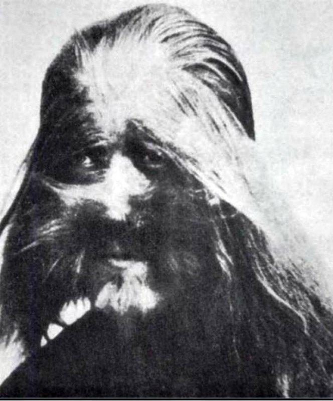 """Fotografía de Li Baoshu, enfermo desde su nacimiento de hipertricosis, trastorno conocido también como """"síndrome del hombre lobo,"""" que provoca un crecimiento excesivo del vello. Esta fotografía estaba expuesta en el zoo de Beijing en los años 20. (Public domain)"""