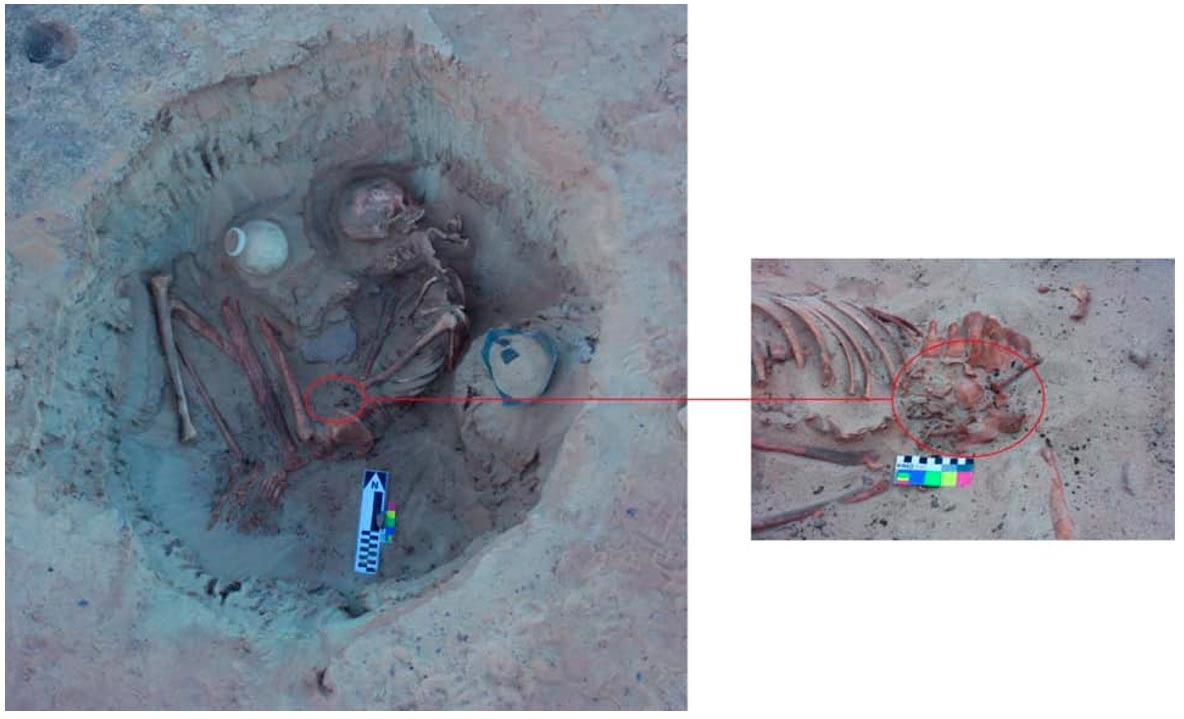 Restos de la mujer embarazada y detalle del feto descubierto dentro de su pelvis. Crédito: Ministerio de Antigüedades egipcio