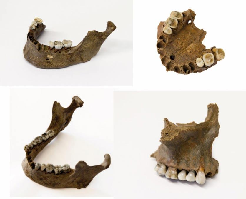 Los dientes y mandíbulas hallados en el yacimiento revelan que los individuos masacrados no eran nativos de esta región holandesa. Fotografía: Universidad Libre de Ámsterdam