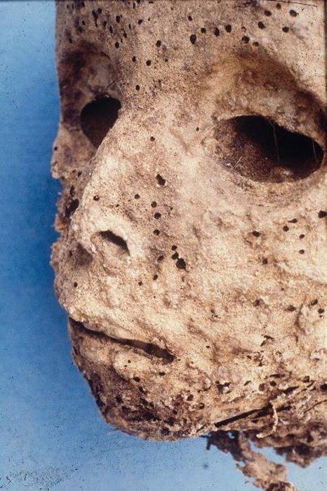 Las marcas de viruela aún son visibles en la cara de la momia del niño. (JD Howell)