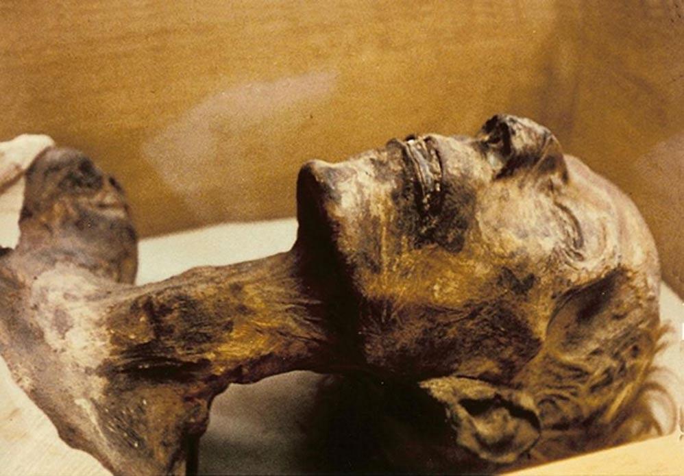 Momia de Ramsés II, faraón de la dinastía XIX. Obsérvese el color rubio de sus cabellos. (CC BY SA 3.0)