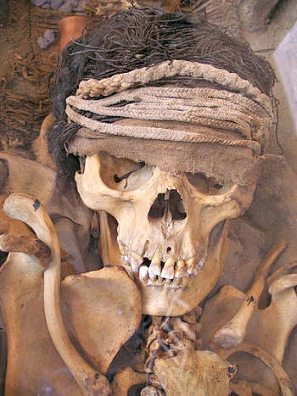 Cráneo de un miembro de la nobleza de la ancestral cultura Lima peruana. (Thomas Quine/CC BY-SA 2.0)