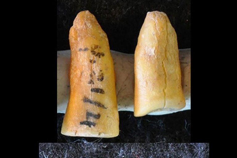 Los seres humanos desarrollaron prácticas dentales terapéuticas miles de años antes de que alimentos como los cereales y la miel fuesen incorporados a nuestra dieta. Fotografía: Gregorio Oxilia