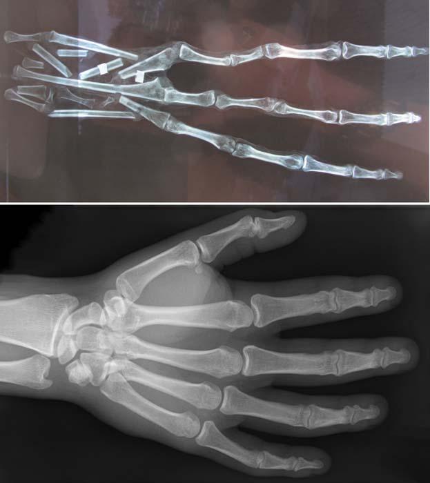 Arriba: la extraña mano momificada descubierta en el desierto peruano vista a través de los rayos X. Se observan 6 huesos en cada dedo (Brien Foerster / Hidden Inca Tours) Abajo: Mano humana vista a través de rayos X. Como podemos ver, en este caso cada dedo tiene únicamente tres huesos. (CC by SA 3.0)
