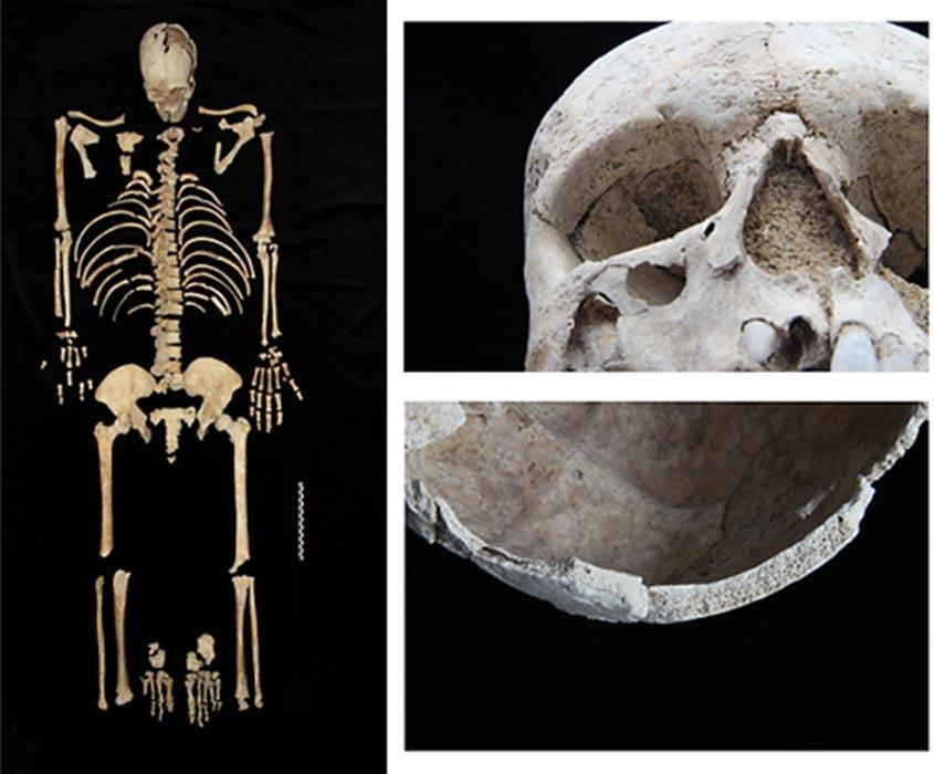 Restos óseos de un antiguo habitante de Falerón que padecía anemia. (Centro Cultural Fundación Stavros Niarchos)