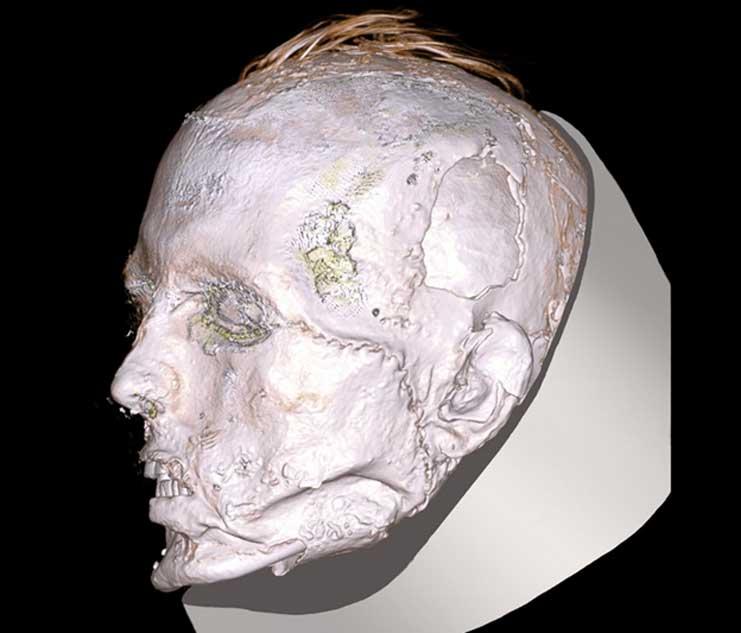 El rostro del guerrero escita presenta una cicatriz que va desde su ojo izquierdo hasta la mandíbula. (Museo Británico)
