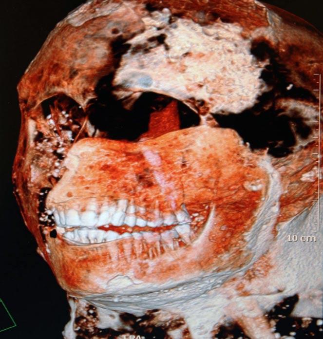 Imagen digital de uno de los moldes de yeso de Pompeya en la que podemos observar la saludable dentadura de este individuo. (Imagen: Napoli/Giino/Ropi/ZUMA Press/Newscom)