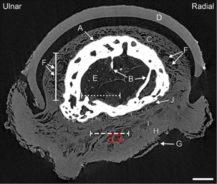Esta imagen nos muestra la punta del dedo de la mano momificada. Sección axial a través de la falange distal del dedo medio. Las flechas indican: hueso (A) con trabéculas (B), lecho ungueal (C), uña (D), médula ósea (E), vasos sanguíneos y/o nervios (F), epidermis (G), dermis (H), hipodermis (I) y periostio (J). Crédito: Sociedad Radiológica de Norteamérica