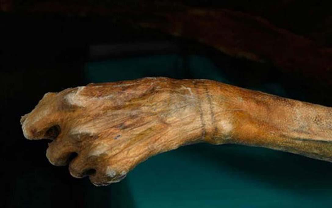 Se observan dos bandas tatuadas en torno a la muñeca de Ötzi. (radiolab.org)