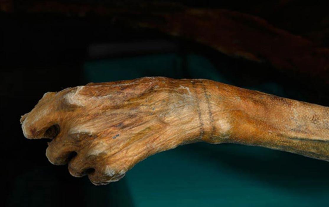 Tatuajes en las muñecas de Ötzi, el Hombre de Hielo (radiolab.org)
