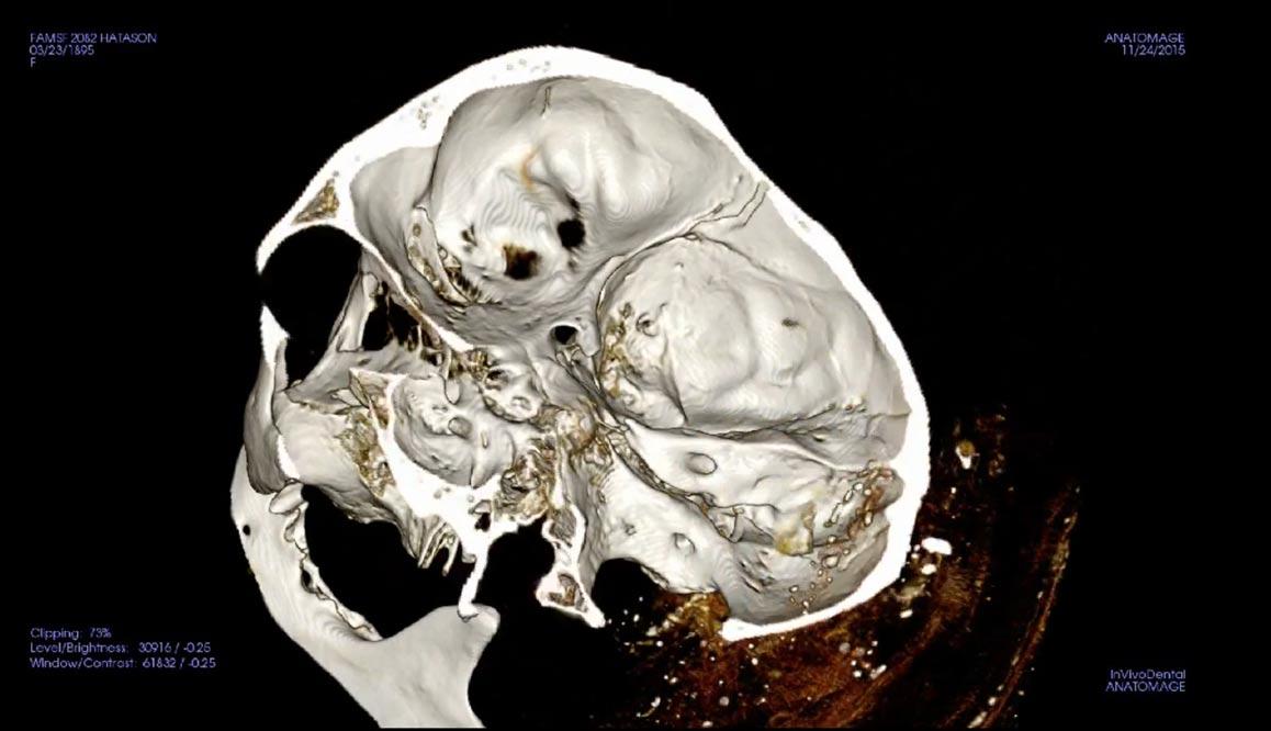 Imagen del vídeo del comunicado de prensa emitido por Stanford News, en la que podemos observar el cráneo de la momia de Hatasón, procedente del Museo de Bellas Artes de San Francisco(Video en YouTube)