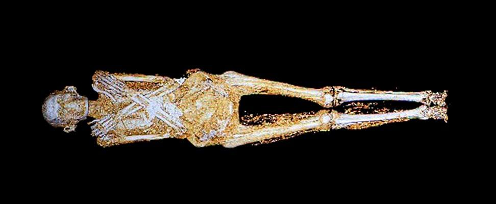 Tomografía computadorizada de la momia egipcia de hace 2.200 años expuesta en el Museo de Israel (Jerusalén). Fotografía: Associated Press