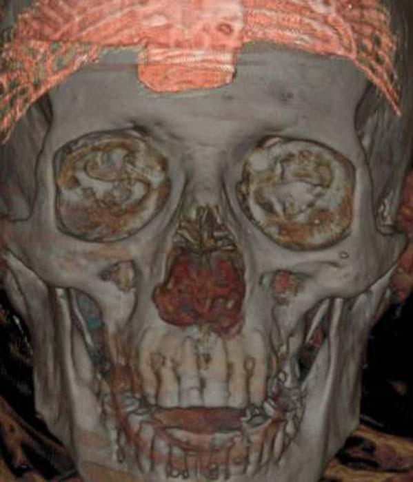 Tomografía del cráneo de la momia. (Imagen: MAN)