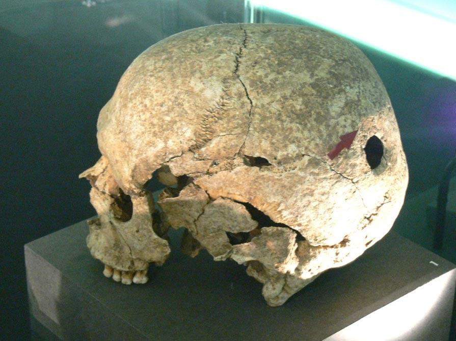 Cráneo con signos de trepanación expuesto en el Museo Celta de Hallein, Salzburgo (CC by SA 3.0)