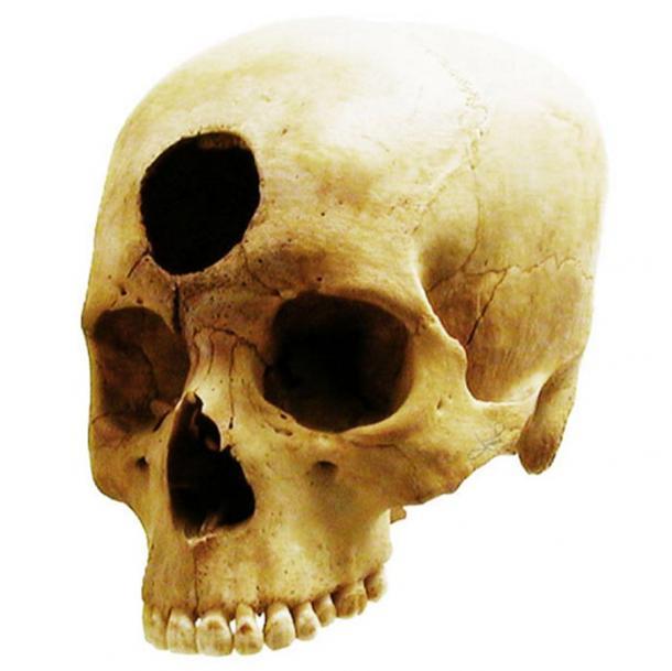 Operación craneal realizada en un individuo de la cultura Nazca peruana hace 2.000 años, presumiblemente para aliviar una inflamación de la cavidad frontal. (tsaiproject / flickr)