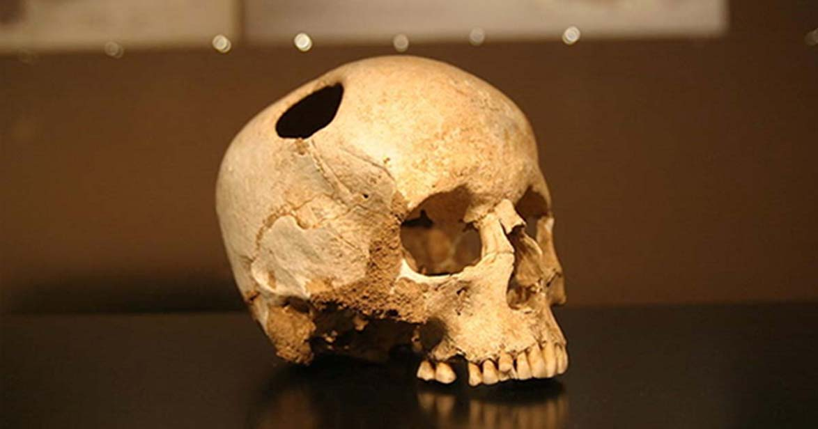 Hay evidencias de este tipo de cirugía mucho más antiguas. Por ejemplo, este cráneo trepanado de una niña que vivió hace 5.500 años y sobrevivió a la cirugía. Museo de Historia Natural de Lausana (CC BY SA 2.0)