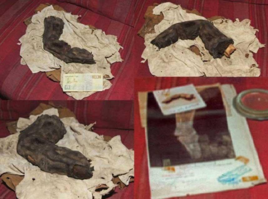 Más imágenes del dedo, entre ellas una radiografía que se realizó en la década de 1960. Cortesía de Gregor Spörri.