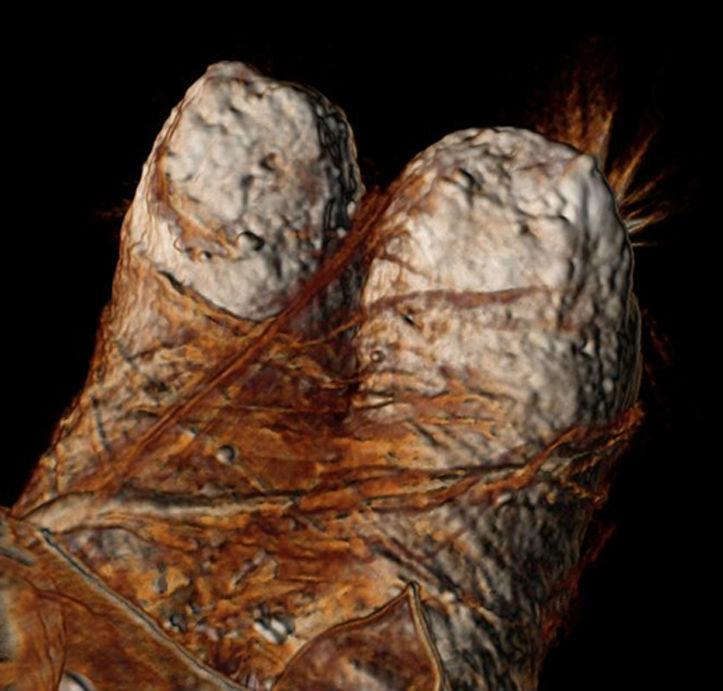 Imagen del escaneo tridimensional mediante tomografía computadorizada de los pies de Ramsés III, en la que se observan los gruesos vendajes de lino empleados en su momificación. (Sahar Saleem y Zahi Hawass)