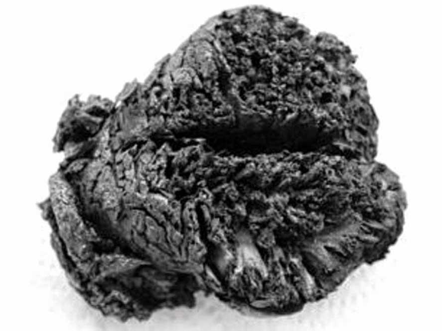 Vista superior de las estructuras frontotemporales del antiguo cerebro hallado en Turquía. (classicsnewsneedsandnow)