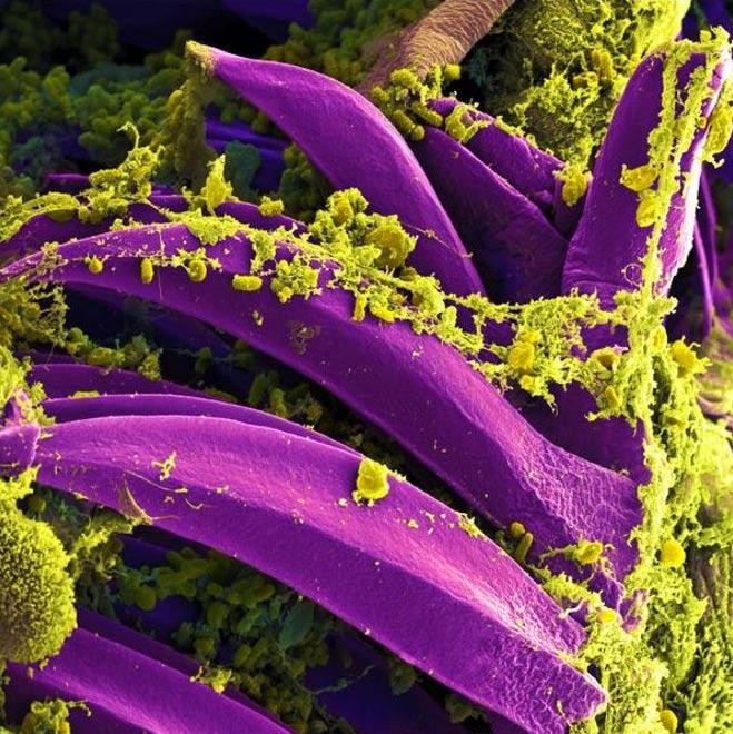 Micrografía electrónica de barrido de la Yersinia pestis, causante de la peste bubónica, sobre una pulga (imagen del Instituto Nacional de Alergias y Enfermedades Infecciosas de los Estados Unidos/Wikimedia Commons)