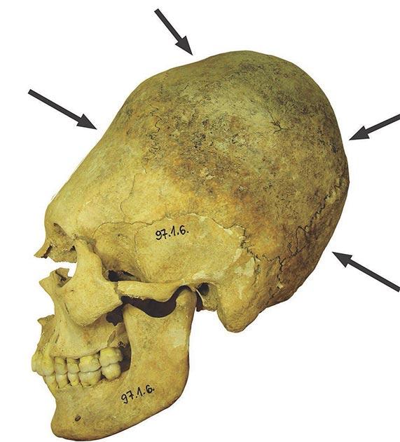 Cráneo artificialmente deformado de una mujer adulta. La unión permanente durante la infancia provocó el alargamiento de la caja cerebral y las depresiones en el hueso. (Balázs G. Mende / Academia Húngara de Ciencias)